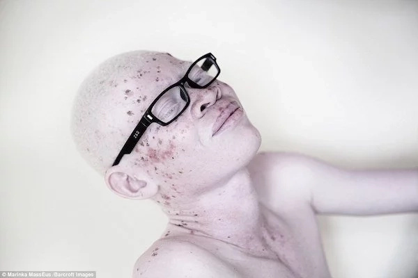 PERSECUTED albinos in Tanzania depict their plight in these powerful photos