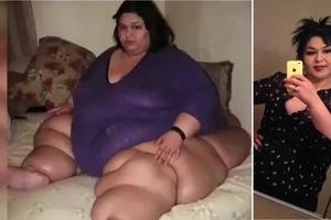 La femme la plus grosse au monde perd 185 Kg