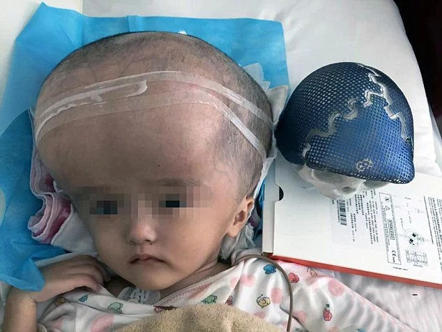 Baby With Giant Head Gets First World 3D Printed Skull ...