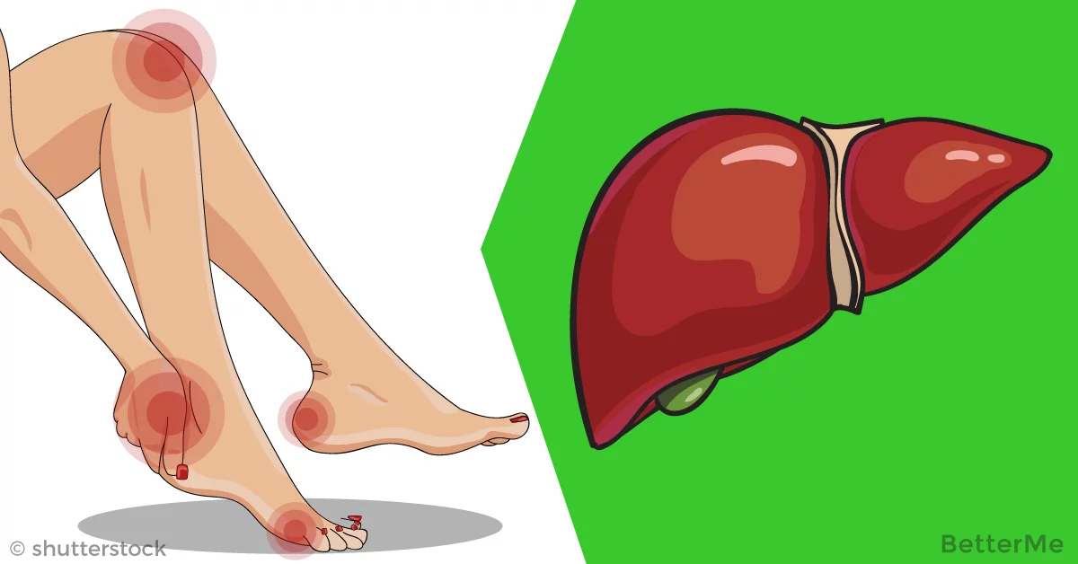 16 serious signs your liver is overloaded with toxins that make you gain fat