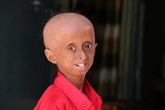 Boy, 11, suffers from condition that makes his body age 8 times faster than normal