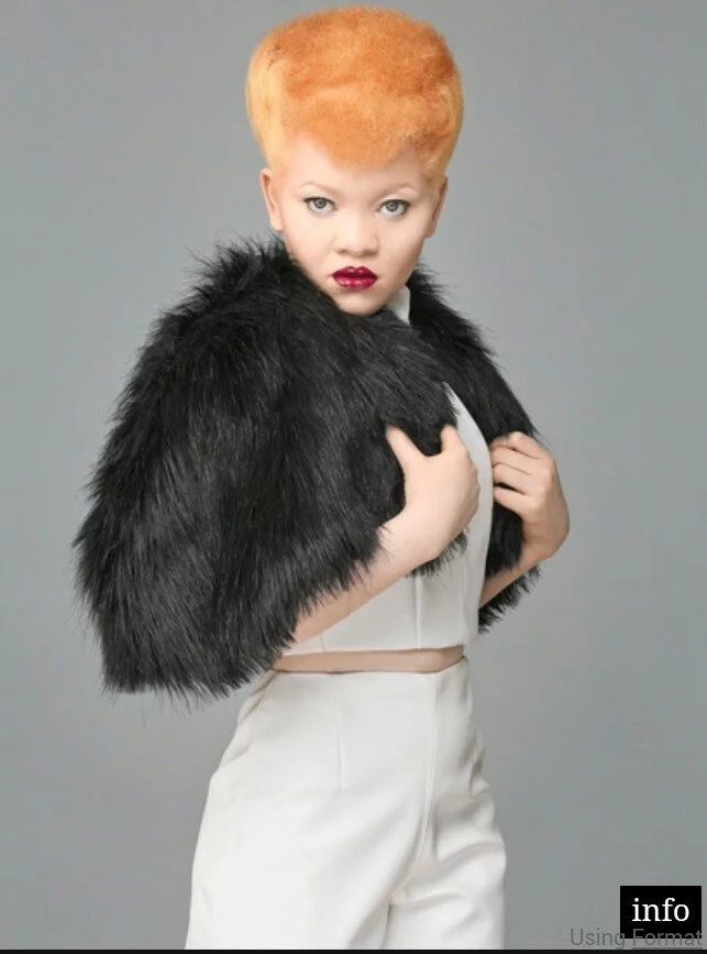This Kenyan model living with Albinism is redefining beauty