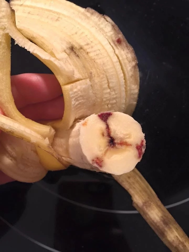 Netizens warned everyone of bananas injected with AIDS and HIV infected blood