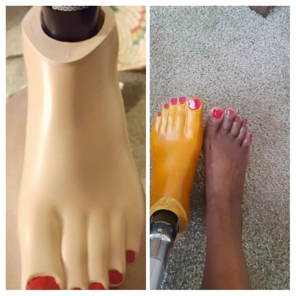 30-year-old Kenyan amputee shocked to find out there was no prosthetic leg that matched her skin