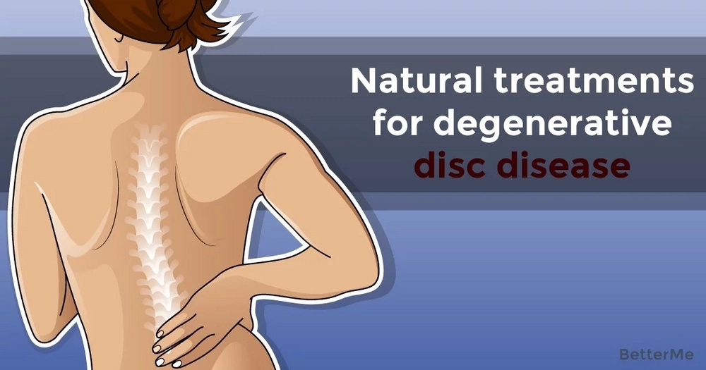 Natural treatments for degenerative disc disease
