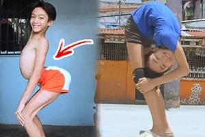 "VIRAL: ""Flexible Flexi-boy"" Just Got Real, Stuns Netizens with Bone-Breaking Antics!"