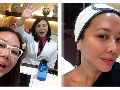 Si Belo mismo ang gumawa! Korina Sanchez shares a video of the actual procedure of her latest beauty transformation