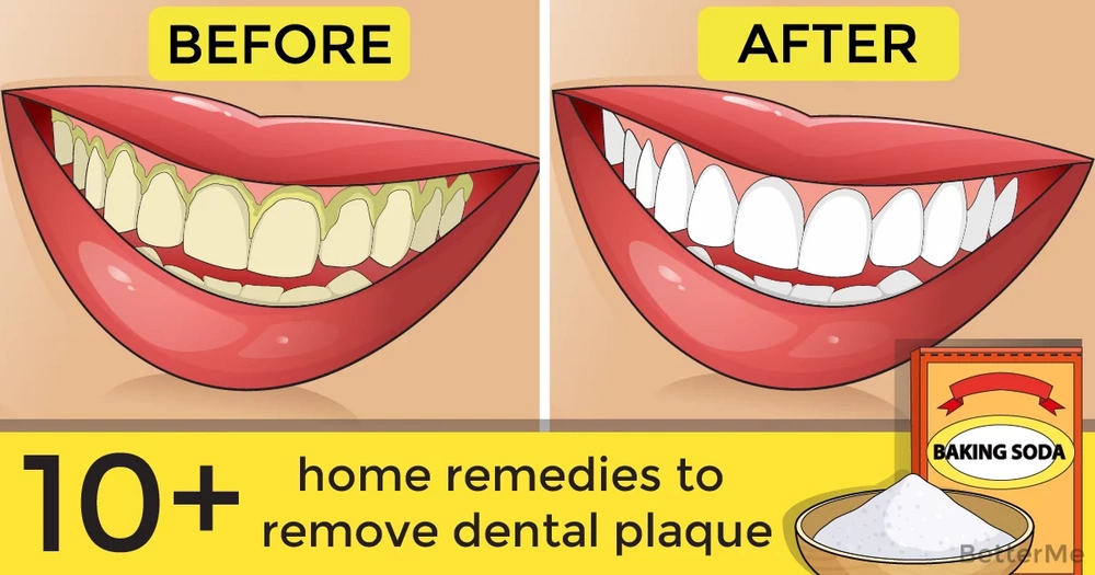 10+ home remedies to remove dental plaque