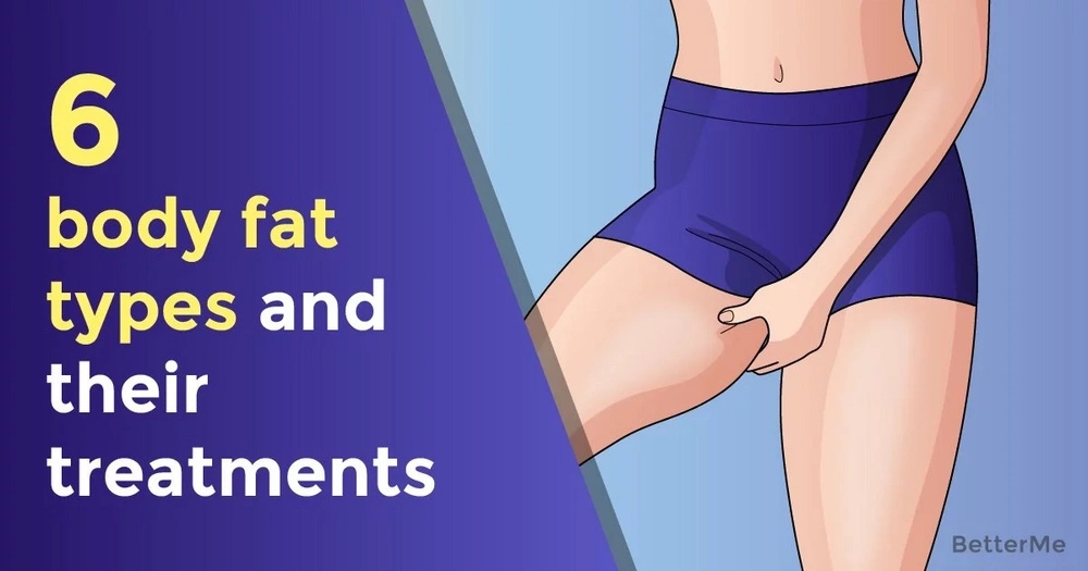 6 body fat types and their treatments