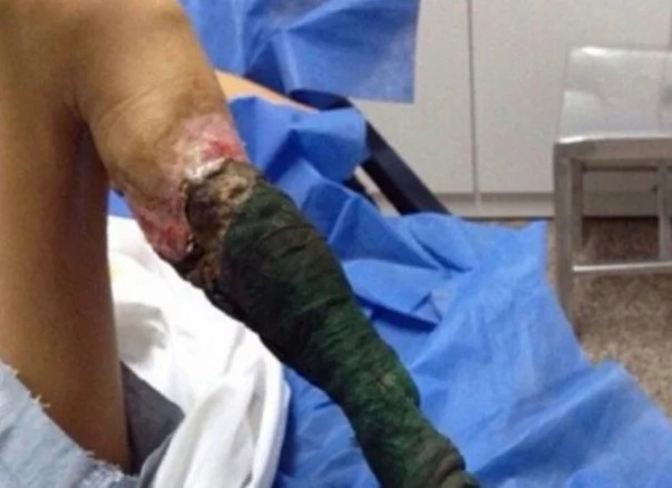 13 Year Girl's Leg Started to Rot Due To This Deadly Snake Biting Her