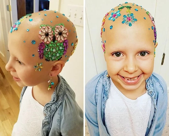 Girl, 7, loses all her hair but keeps smiling and dazzling everyone