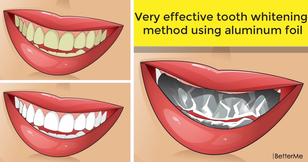 Very effective tooth whitening method using aluminum foil