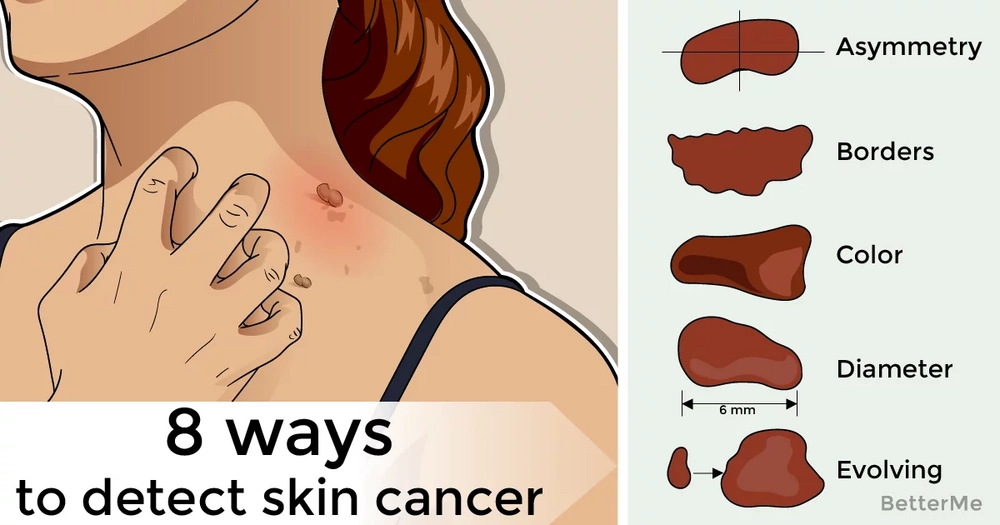 8 ways to detect skin cancer