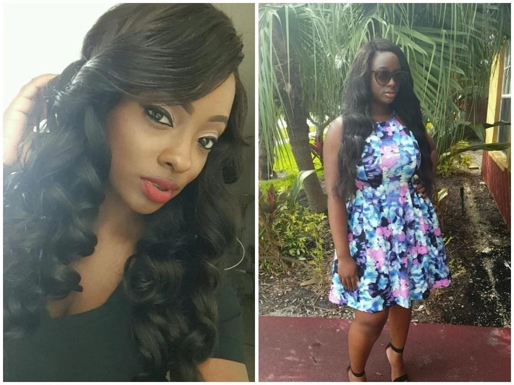 I questioned God! 23-year-old lady tells how she survived shooting but was left with MELTED skin all over her body (photos)
