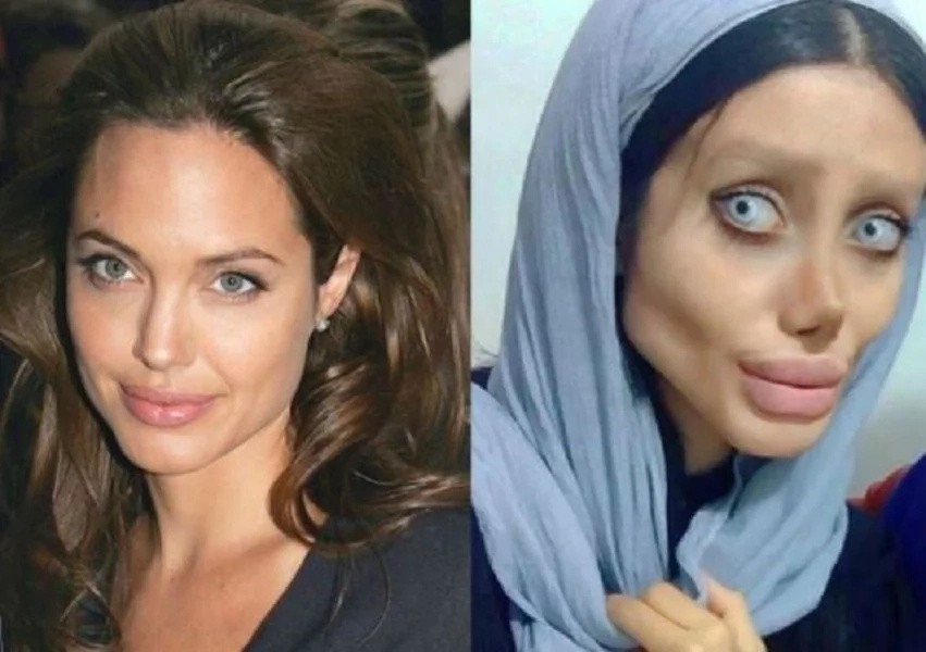 Woman, 19, underwent 50 surgeries to look like Angelina Jolie only to look like THIS