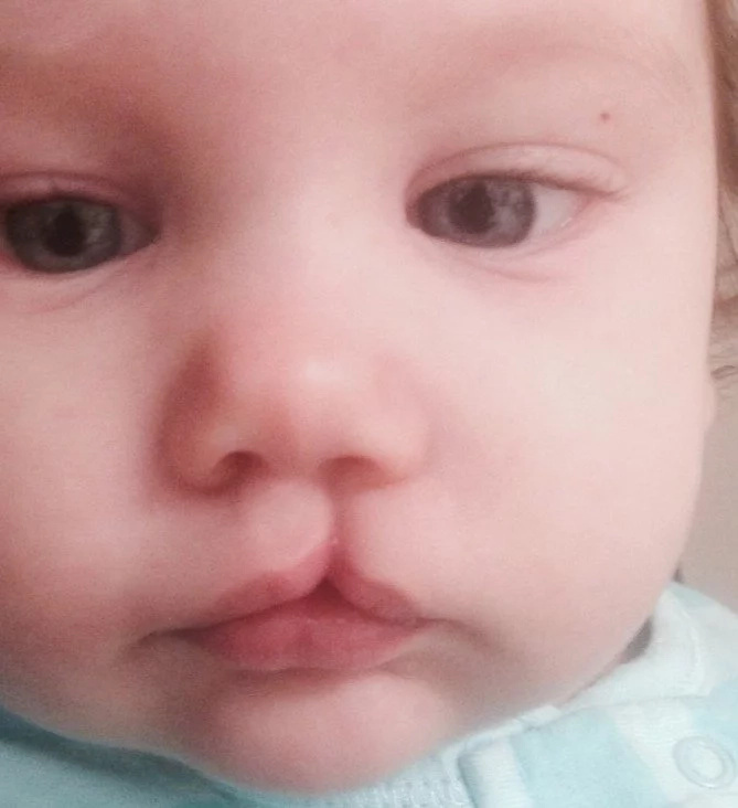 """Doctor Told Us To Abandon Our Child With A Cleft Lip: """"You're Young You'll Have Other Kids"""""""