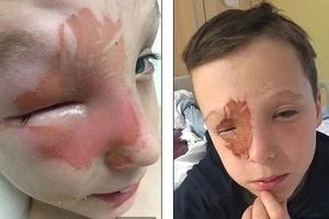 Pólvora explotó en el rostro de un niño de 10 años y podría perder la vista