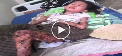 Heartbreaking video shows poor Iloilo girl with flesh-eating disease asking netizens for help