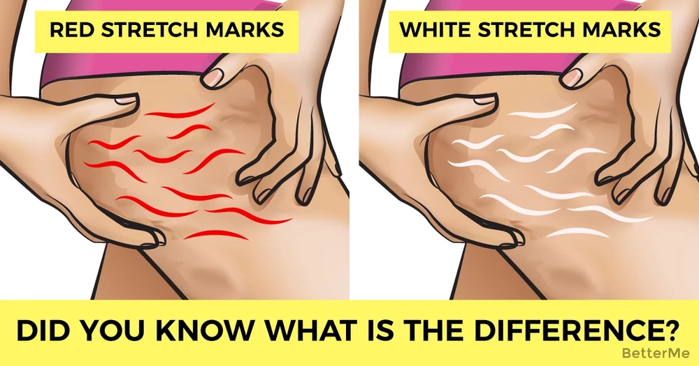 Did you know the difference between red and white stretch marks