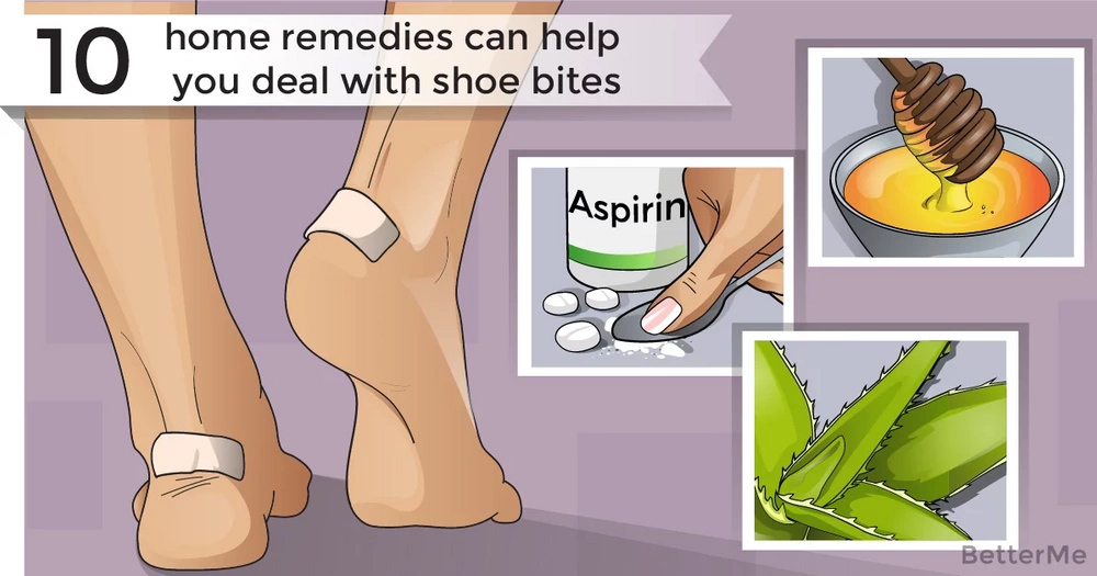 10 home remedies can help you deal with shoe bites