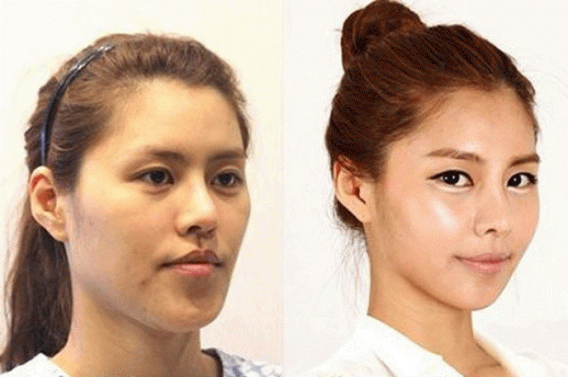 These women tried plastic surgery. The result? Shocking!