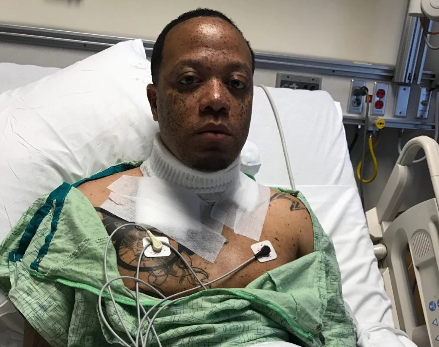 Man falls asleep with iPhone charging in bed, it electrocutes him almost to death (photos, video)