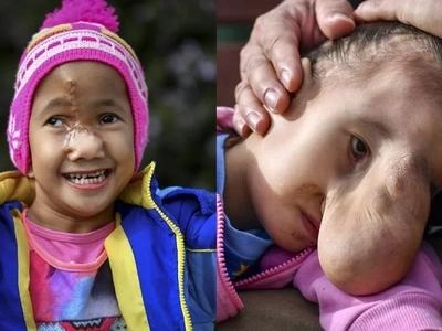 Salamat may surgery! Pinay girl with