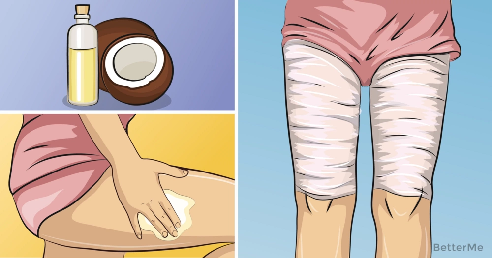 Effective coconut oil body wrap to reduce legs size