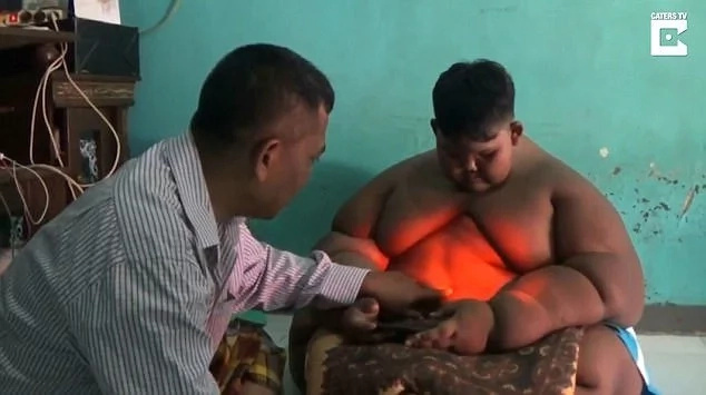 Boy, 10, who ate meal meant for 3 adults and walked naked because no clothe could fit him undergoes surgery (photos)