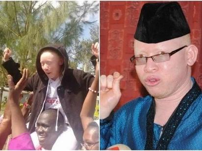 Albinism Society of Kenya congratulates Kakamega girl who emerged top in KCPE