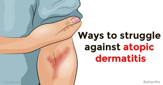 Is your skin dry and itchy? See here the ways to struggle against atopic dermatitis