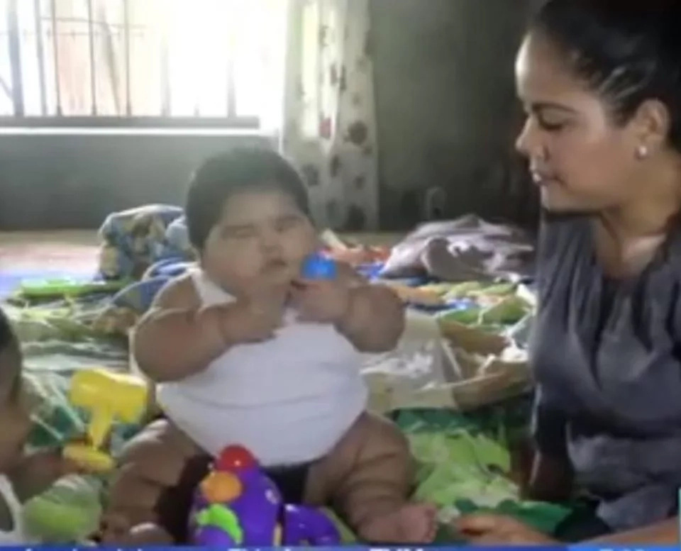 Parents in panic as their 10-month-old giant toddler hits staggering 30 kilos on weighing scale