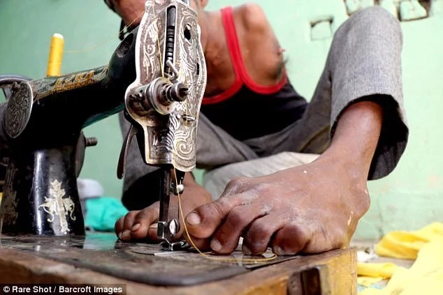 He is now adept at stitching using his feet. Photo: Barcroft Images