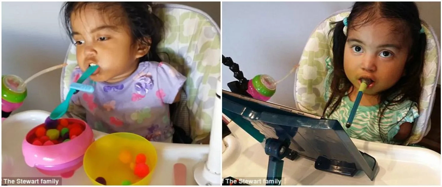 Inspiring! Parents adopt baby with no limbs, share their TOUCHING story (photos, video)