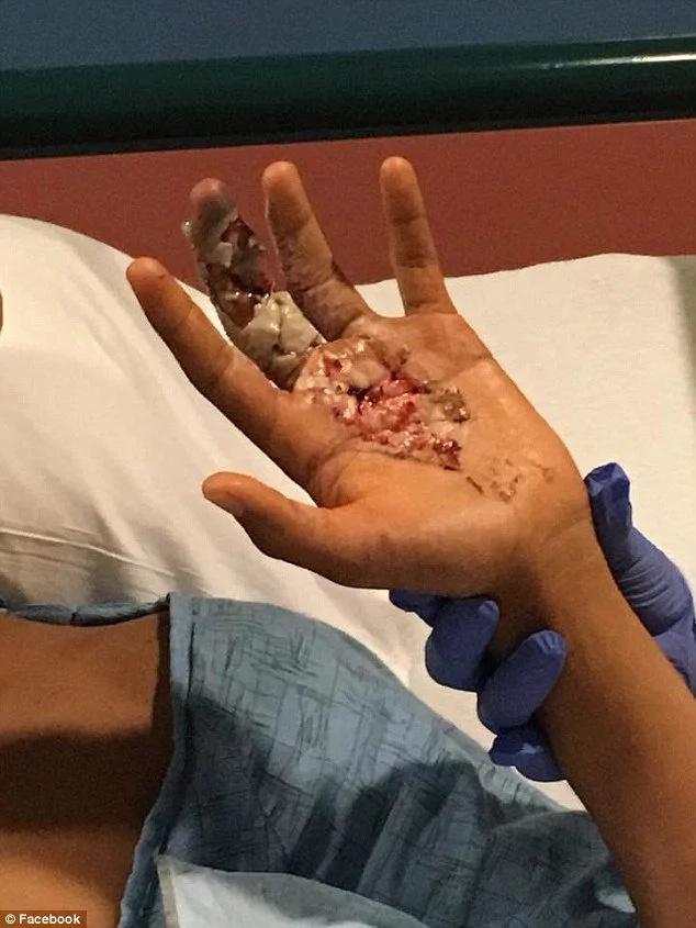 Flesh-eating virus corrupting boy's body as he nicks his hand