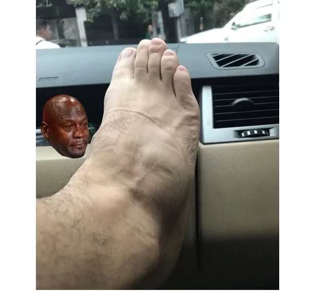 """So Yes, i have a fractured foot with quite a long healing time.."" Luis Manzano On Instagram"