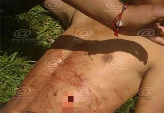 Joven estudiante es violado y apuñalado en un terreno baldío