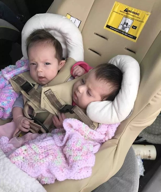 Meet parents who refuse to separate their conjoined twins that doctors told to abort (photos, video)