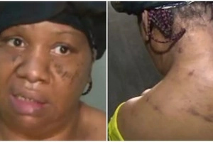 Woman stabbed 13 times by boyfriend while in HOSPITAL bed after she dumped him (photos, video)