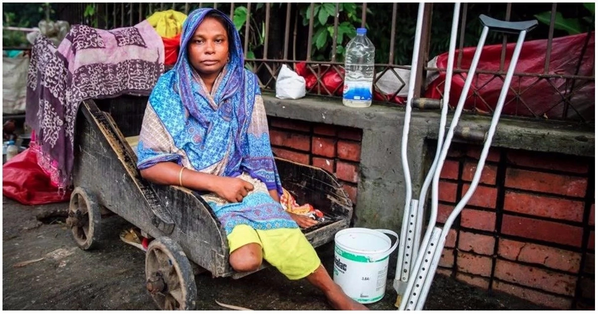 Meet 30-year-old crippled woman who lost her leg in train accident shares her story