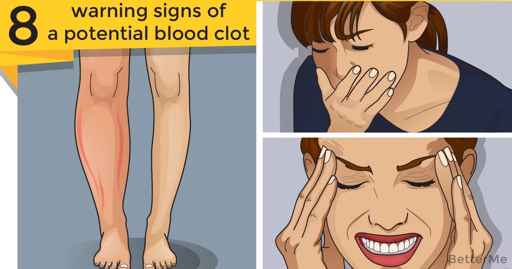 8 warning signs of a potential blood clot that you shouldn't ignore