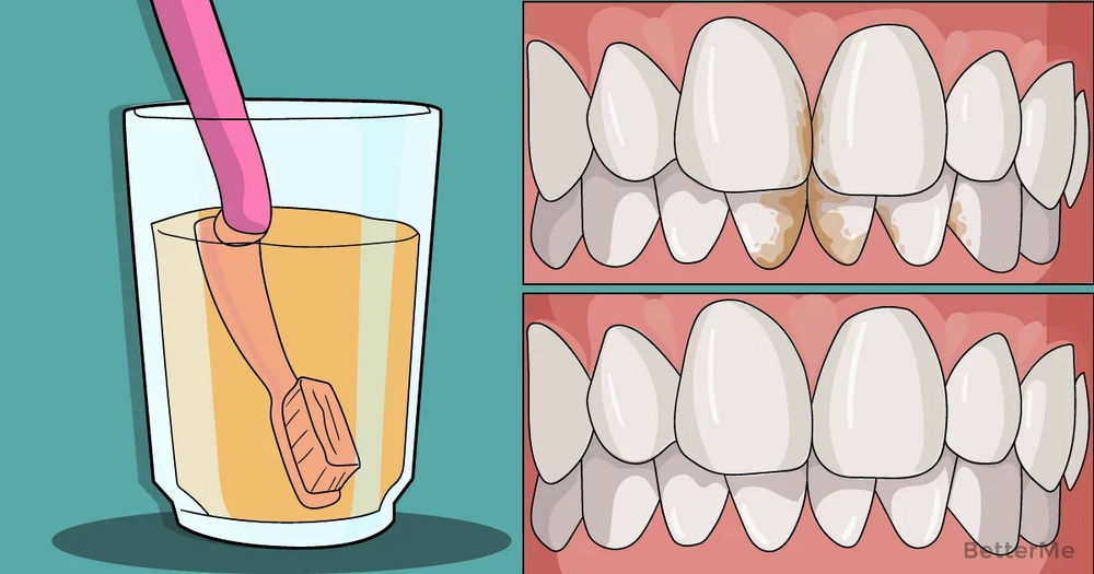 4 ways that remove tartar from your teeth
