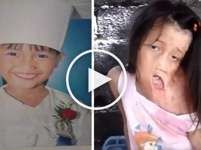 Hearbreaking video shows disfigured girl caught in Leyte fire accident passionately singing 'Let it Go'