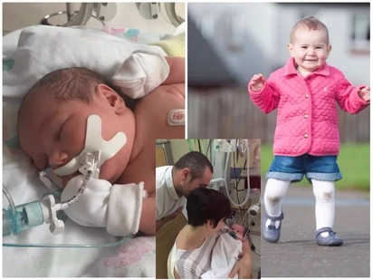 Little warrior! Toddler who was born with 4 large holes in her heart miraculously survives