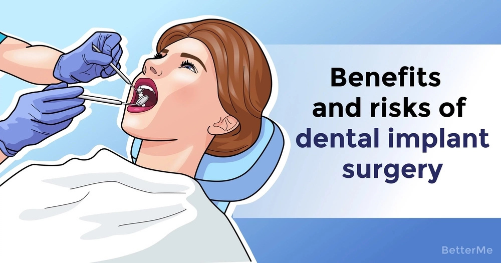 Benefits and risks of dental implant surgery