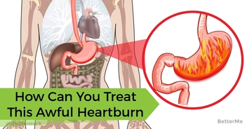 What can I do with this awful heartburn? See tried GERD treatment here