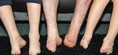 Brothers born without feet wanted something special this Christmas, THIS is what they get