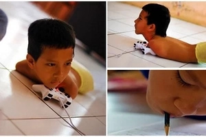 This boy has no arms or legs, see how he learned to use what he's got!