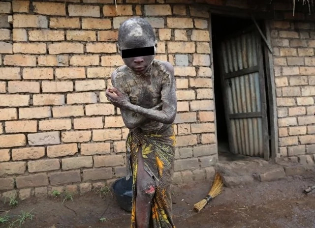Boy, 13, suffers from strange skin disease that has left his family BANKRUPT and in deep agony (photos)