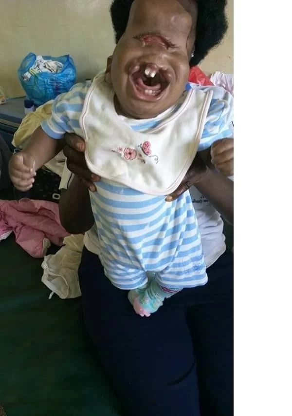 Child born with facial deformity abandoned in a Kisumu hospital (photos)